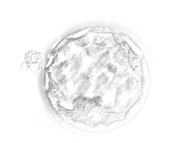 Embryo Ranking Erica